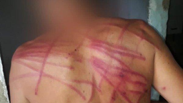 Legitimados pelas declarações de Bolsonaro, PMs torturam jovem negro vulnerável no Chapadão